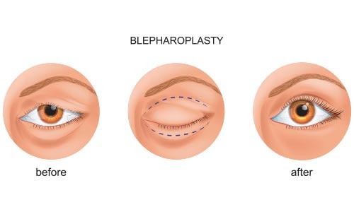 Oculoplastic Blepharaolasty Treatment Los Angeles