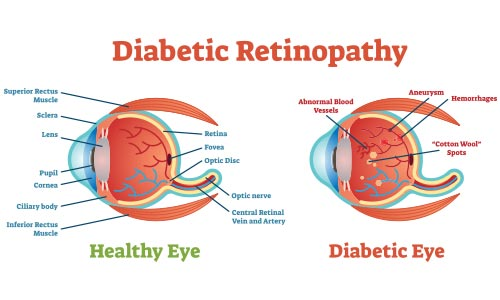 diabetic-retinopathy treatment los angeles