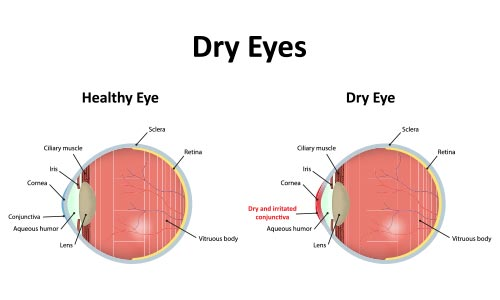 dry eye treatment los angeles