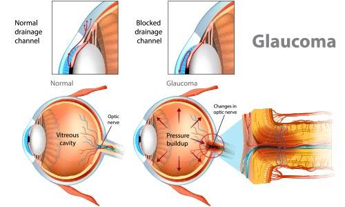 Glaucoma Treatment Encino