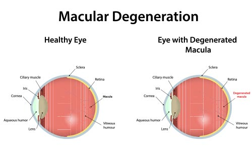 macular-degeneration-treatment-los-angeles