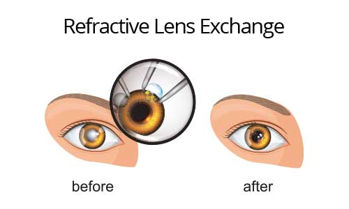 Refractive Lens Exchange Treatment Los Angeles